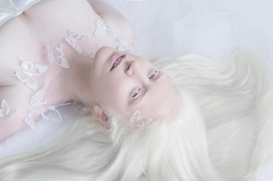 beleza-albina-1