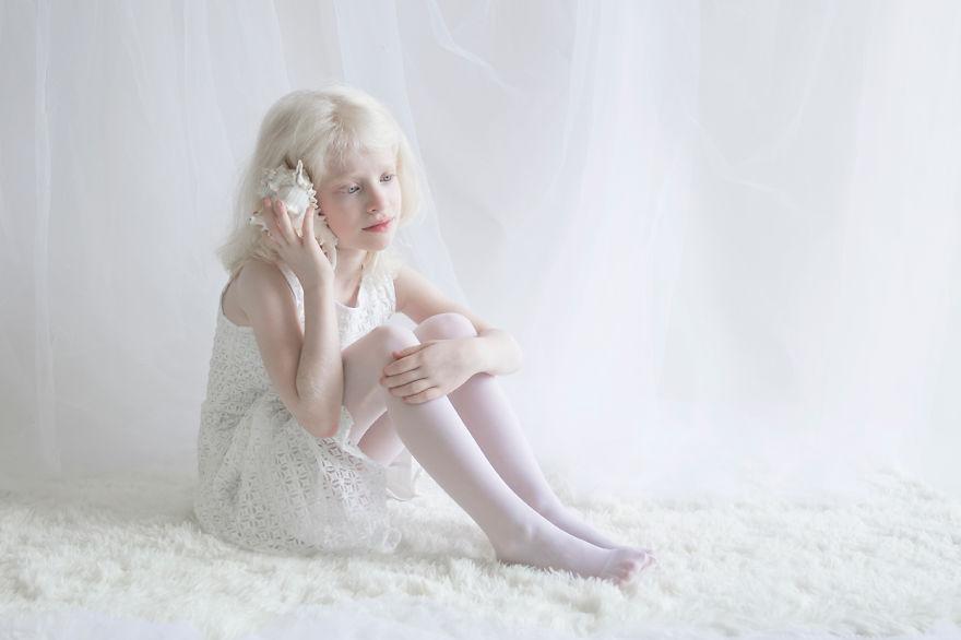 beleza-albina-10