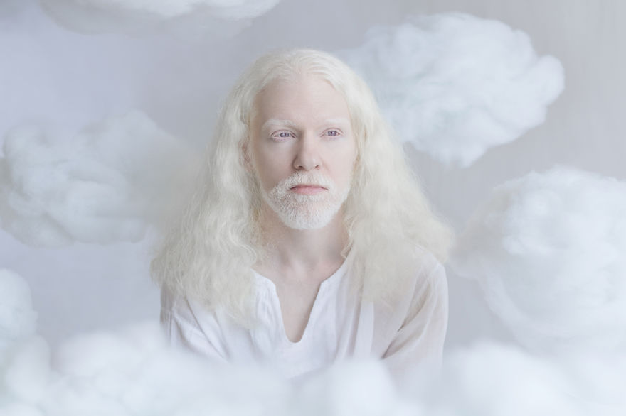 beleza-albina-3