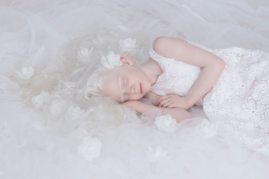 beleza-albina-4