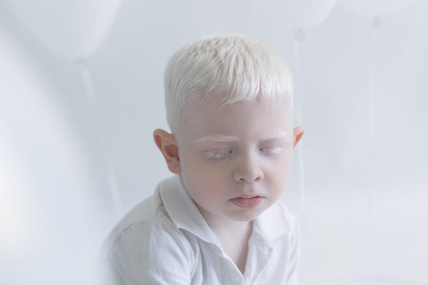 beleza-albina-5