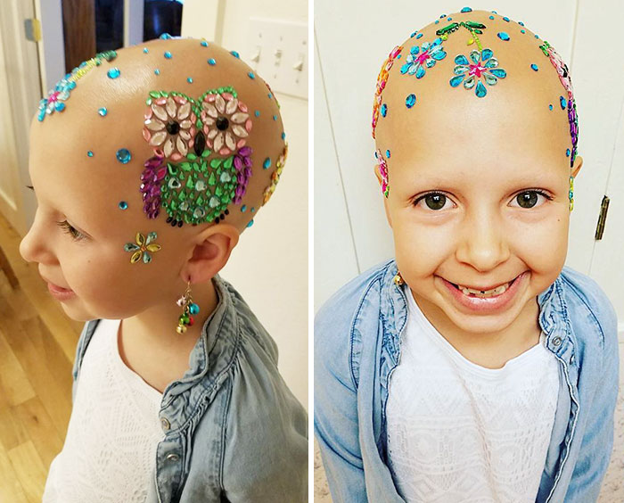 alopecia-crianca (1)