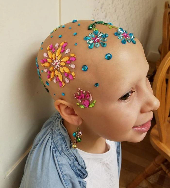 alopecia-crianca (2)
