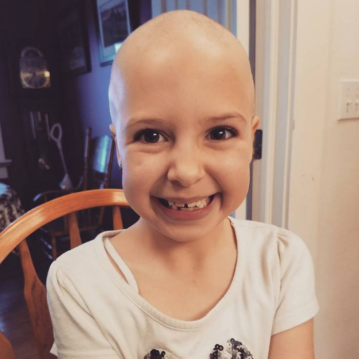 alopecia-crianca (3)