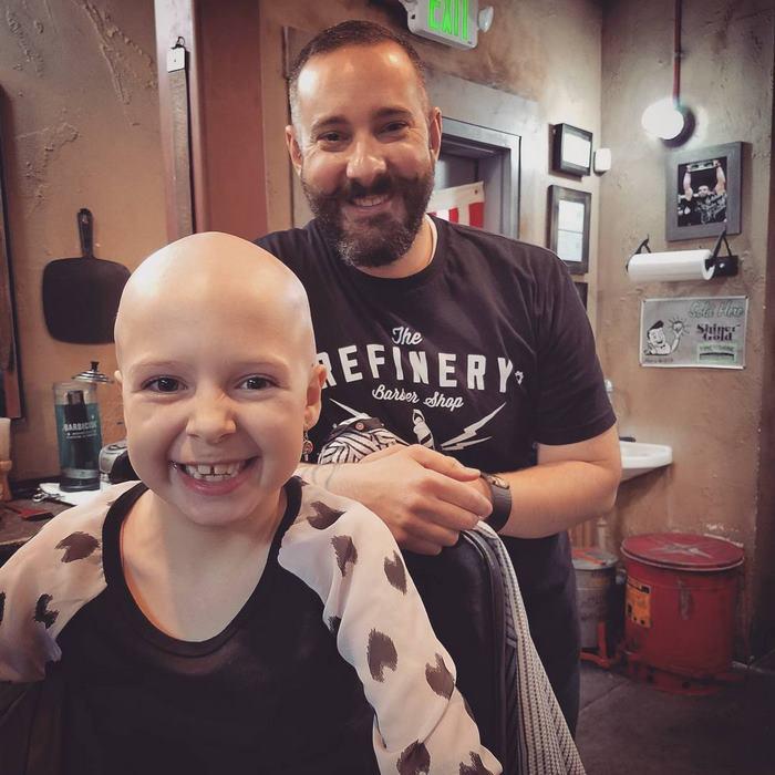 alopecia-crianca (6)