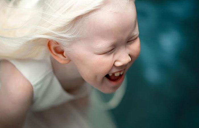 garota-albina-siberia (1)