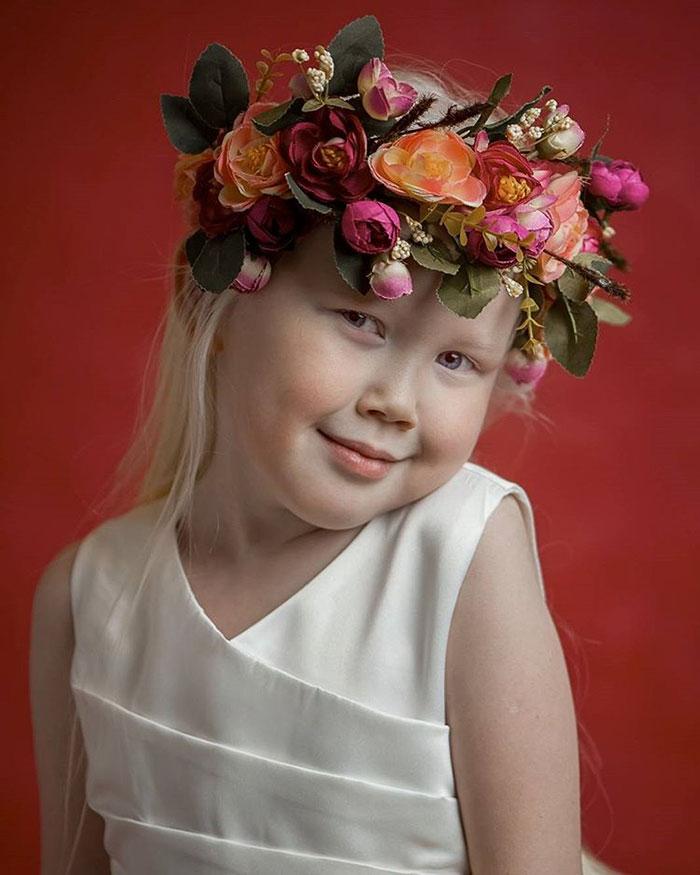 garota-albina-siberia (10)