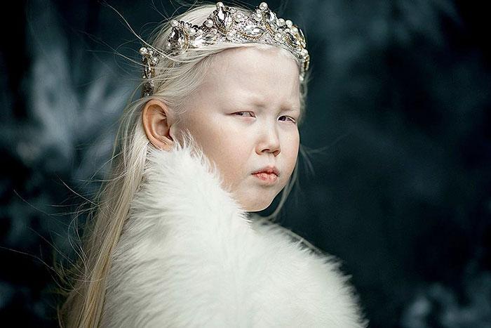 garota-albina-siberia (11)
