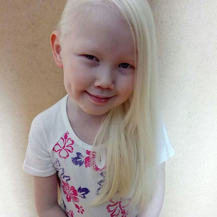 garota-albina-siberia (12)