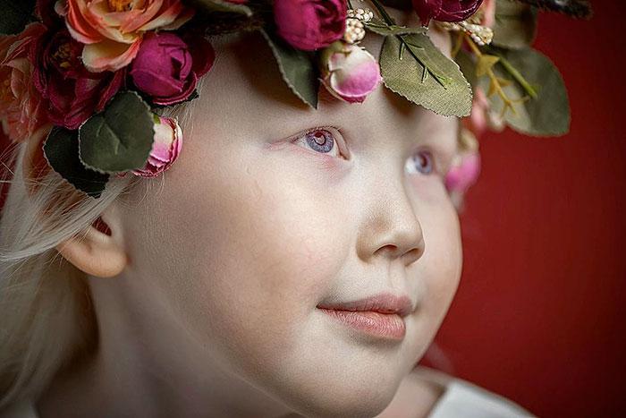 garota-albina-siberia (14)