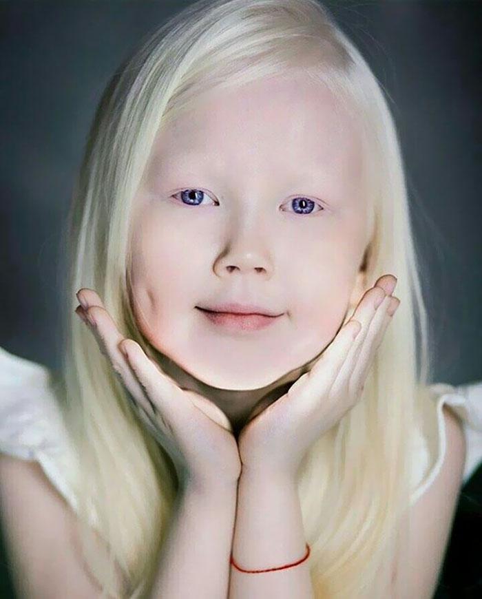 garota-albina-siberia (2)