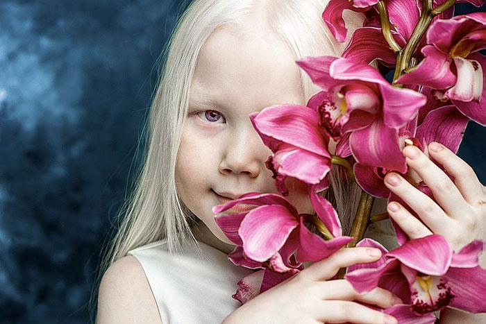 garota-albina-siberia (5)