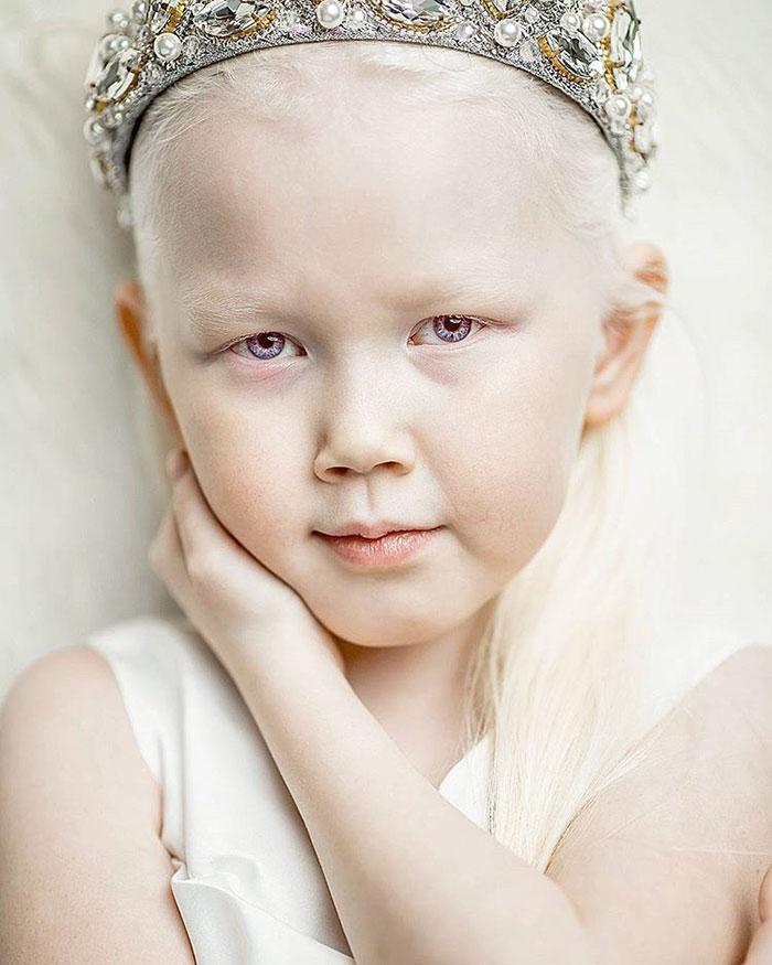 garota-albina-siberia (6)