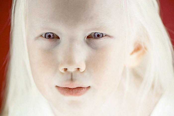 garota-albina-siberia (7)
