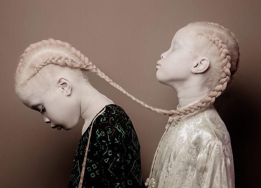 irmas-albinas (1)