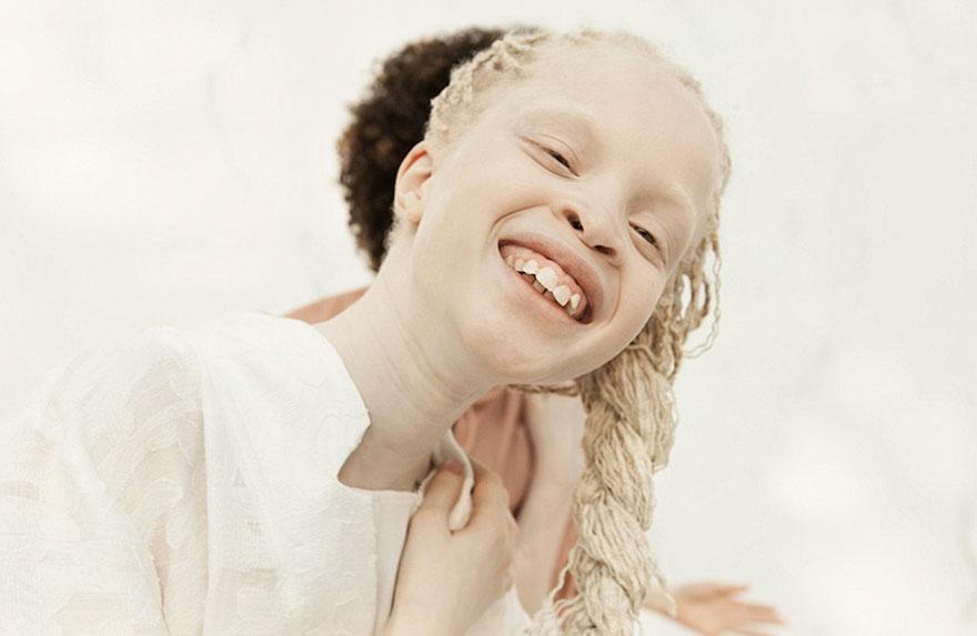 irmas-albinas (10)