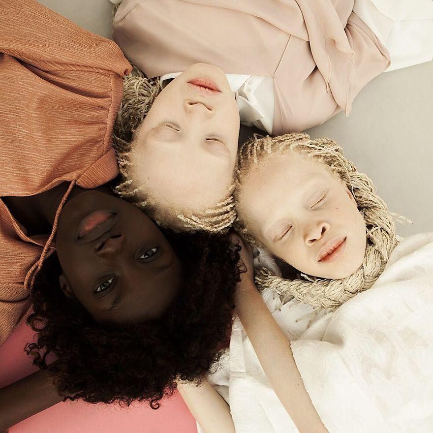 irmas-albinas (11)