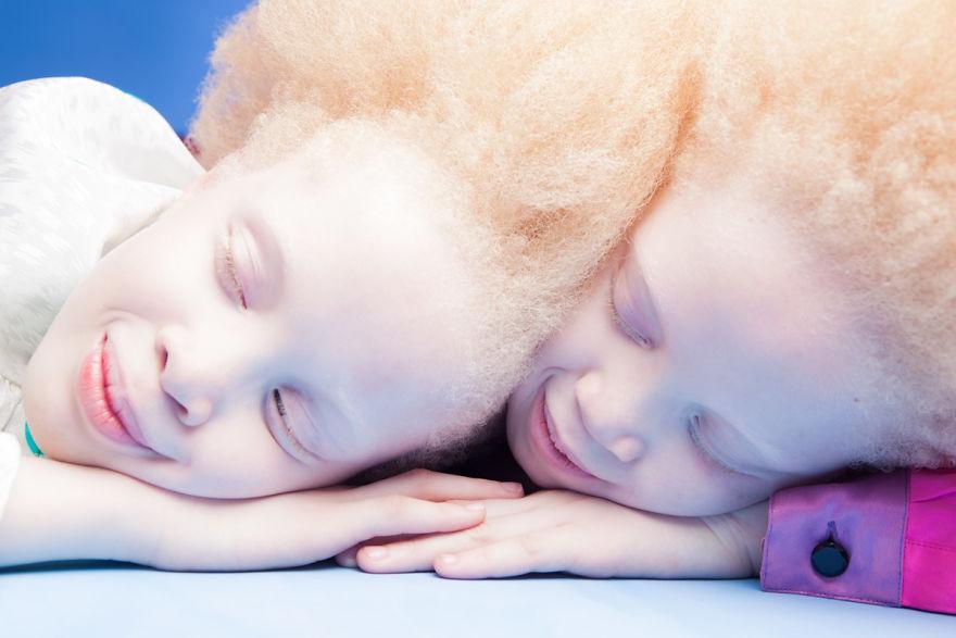 irmas-albinas (2)