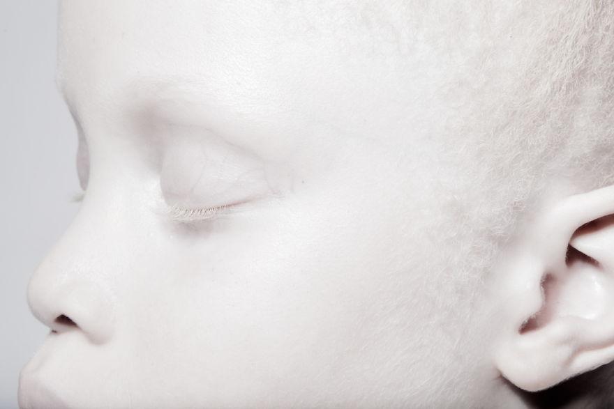 irmas-albinas (3)
