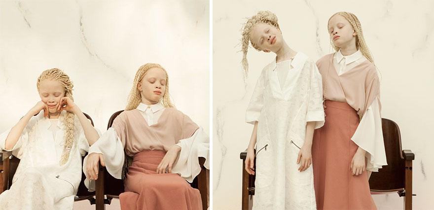irmas-albinas (4)