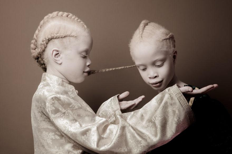 irmas-albinas (6)