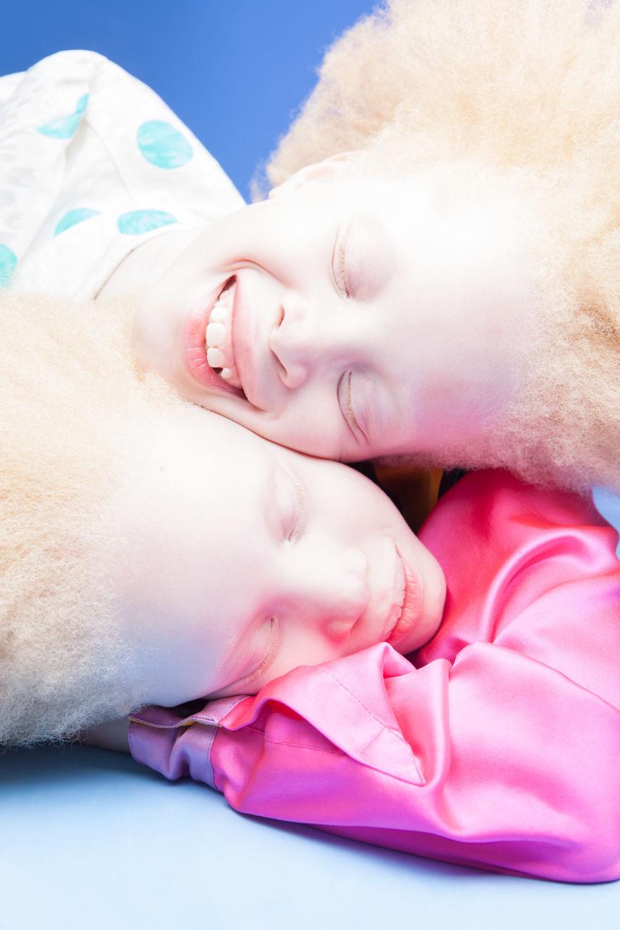 irmas-albinas (7)