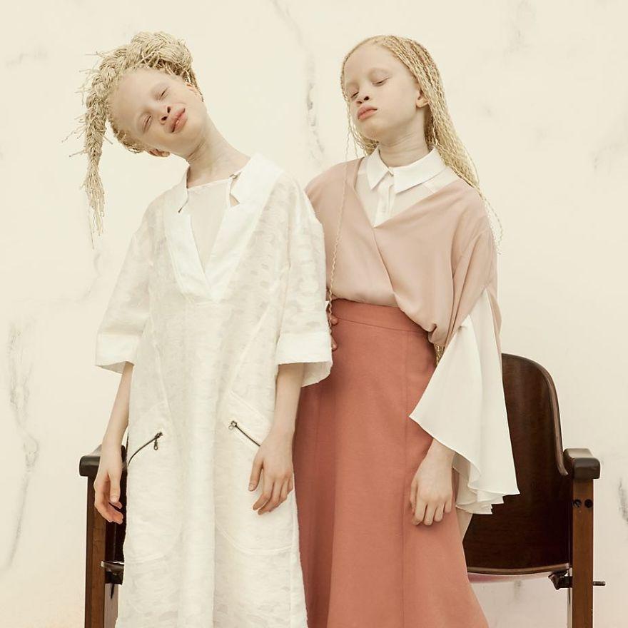 irmas-albinas (8)