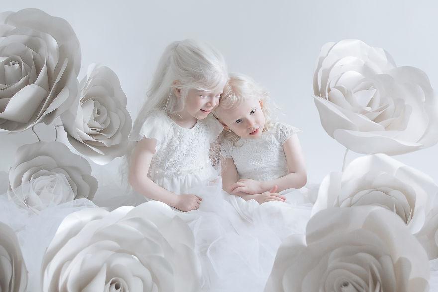 beleza-albina (1)