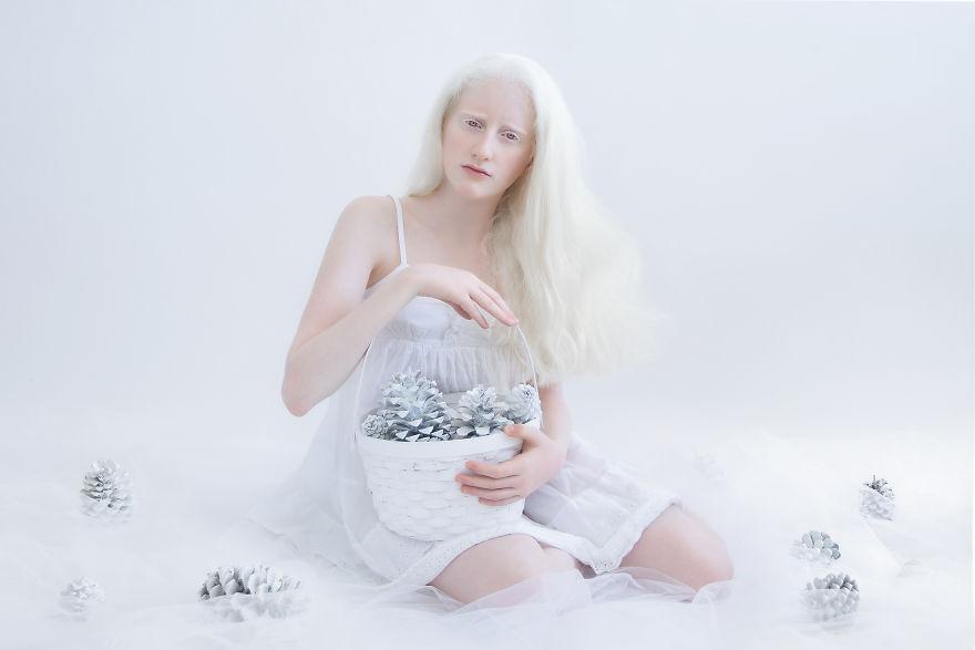 beleza-albina (10)