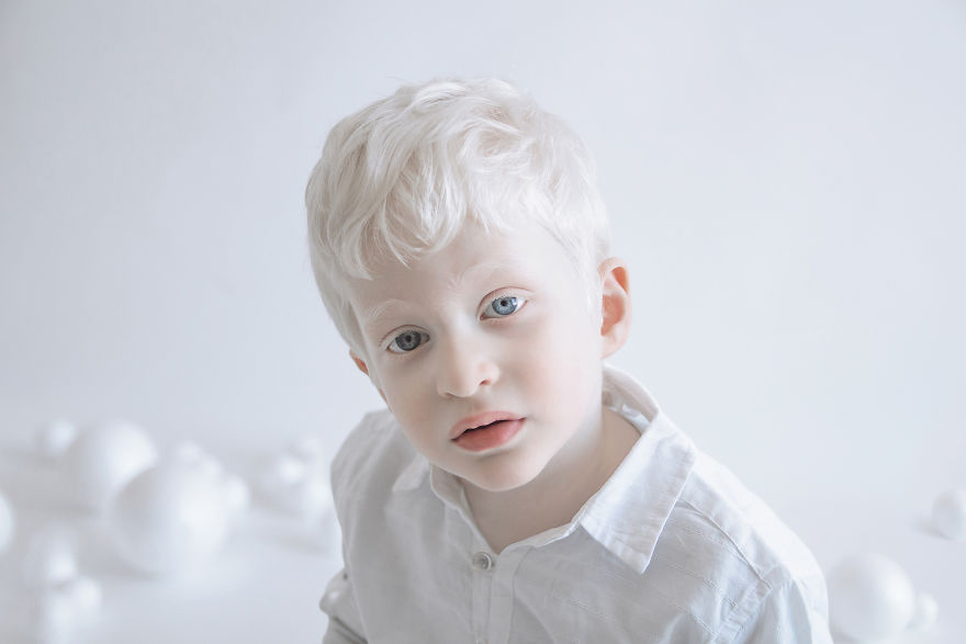 beleza-albina (12)