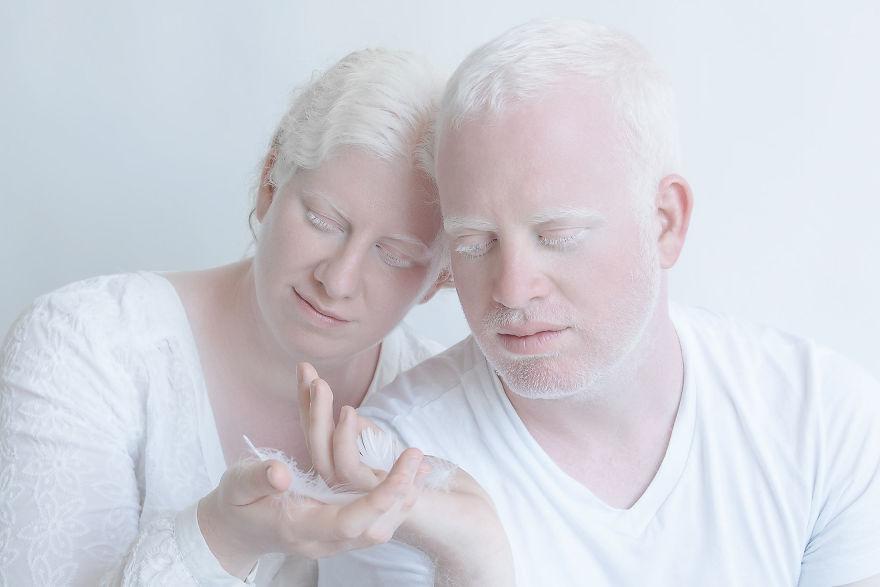 beleza-albina (13)