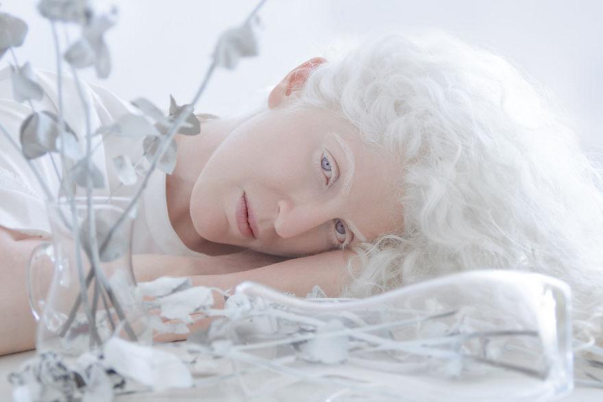 beleza-albina (3)