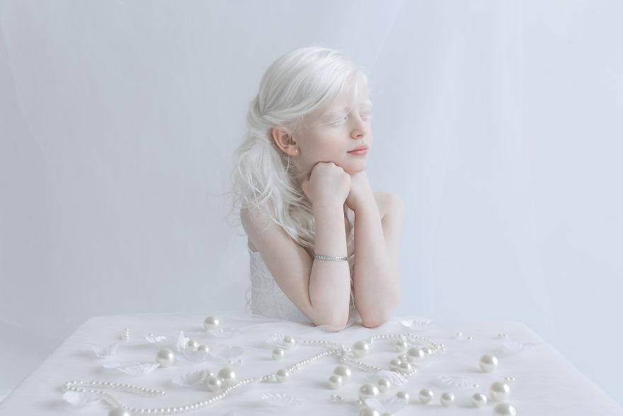 beleza-albina (4)