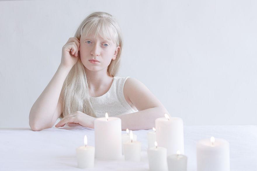 beleza-albina (5)