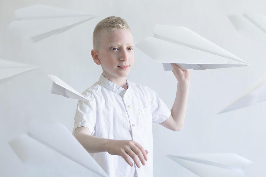 beleza-albina (8)