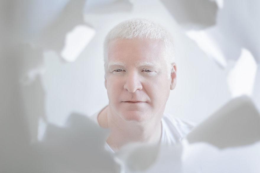 beleza-albina (9)